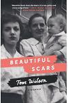 Beautiful Scars: A Memoir