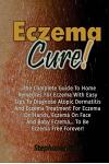 Eczema Cure!: The Complete Guide to Home Remedies for Eczema With Easy Tips to D