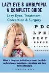 Lazy Eye & Amblyopia. Lazy eyes, treatment, correction and surgery. What is lazy eye, definition, causes in adults and children, symptoms, exercises.
