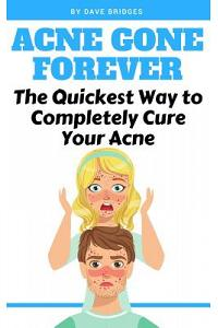 Acne Gone Forever: The Quickest Way to Completely Cure Your Acne